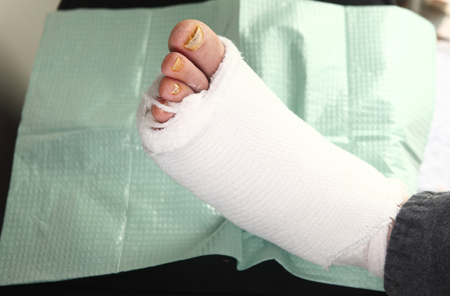 Diabetic-Foot-Care