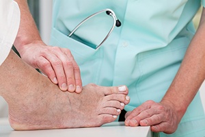 Treating Bunions
